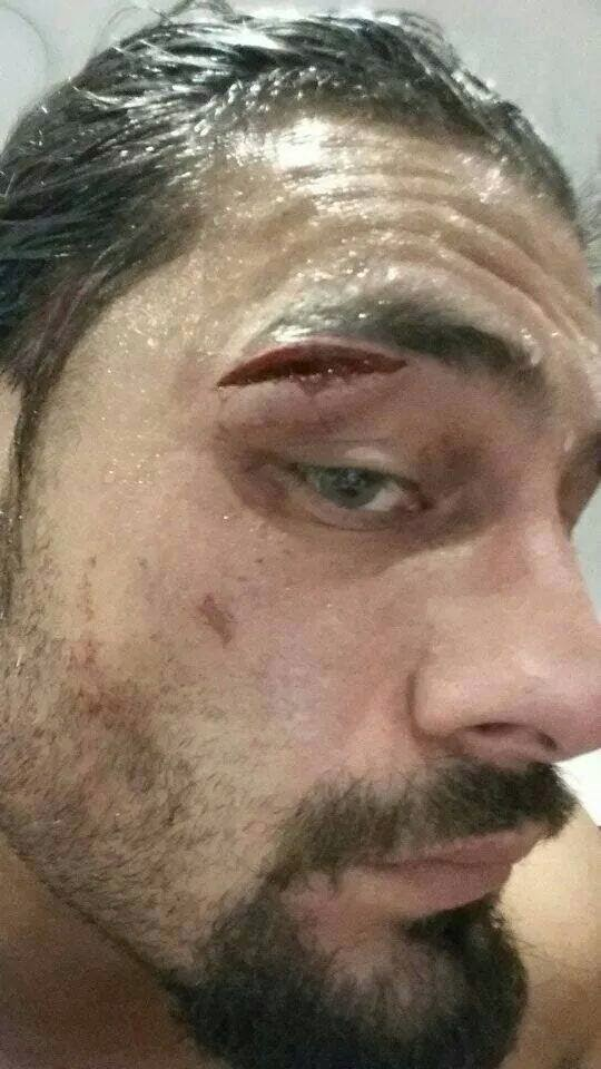 Roman Reigns busted open