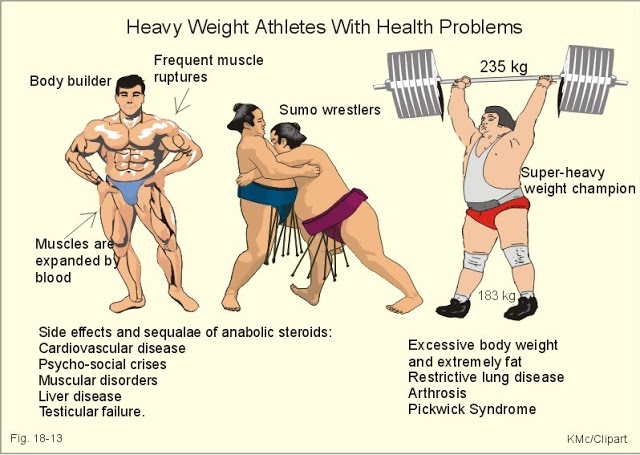 Heavy Weight Athletes With Health Problems